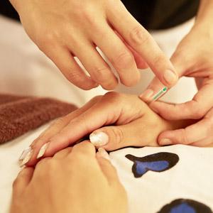 美容鍼灸3