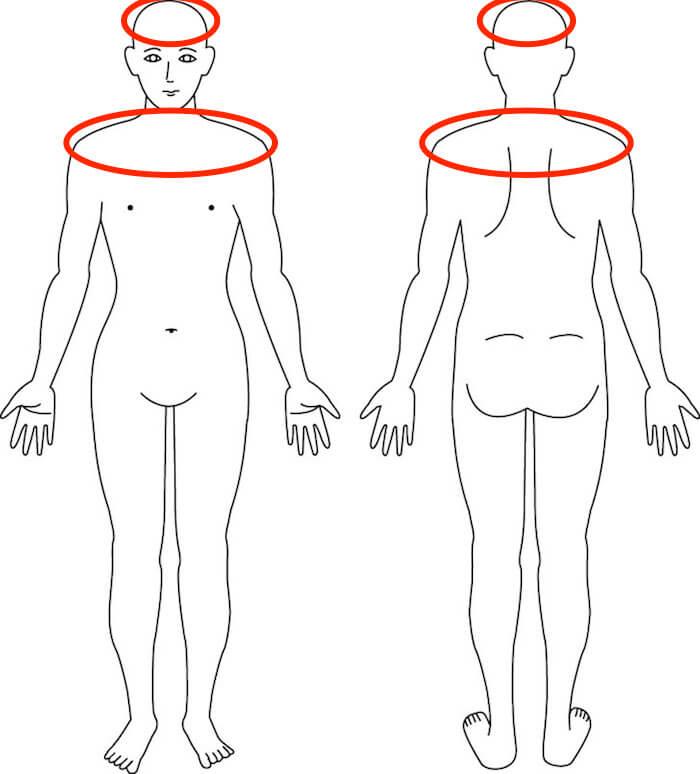 吹田市江坂の肩・頭痛症例