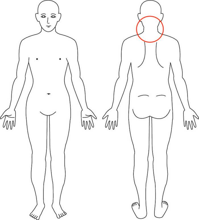 吹田市江坂の首の痛み症例