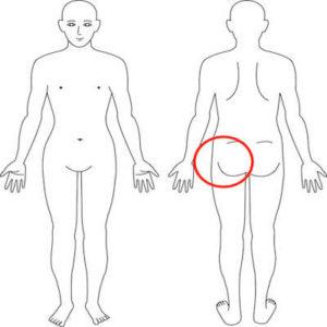 吹田市江坂の左臀部症例