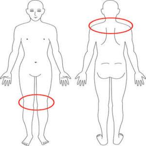 吹田市江坂の産後肩膝症例