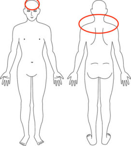 吹田市江坂の首肩 頭痛症例