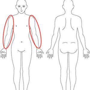 吹田市江坂の腕のだるさ症例