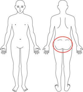 吹田市江坂の臀部症例