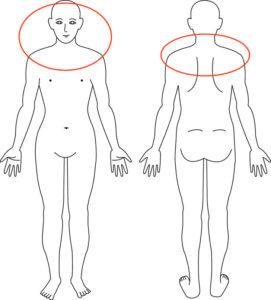 吹田市江坂の肩首のこり症例