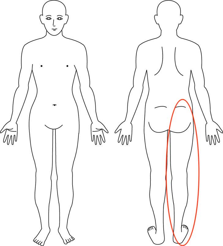 吹田市江坂の症例右足