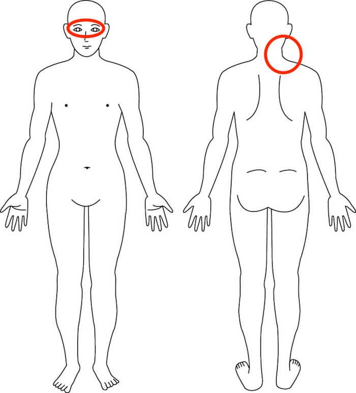 症例 吹田 首の痛み